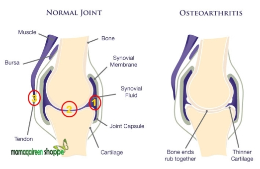 Knee-Joint